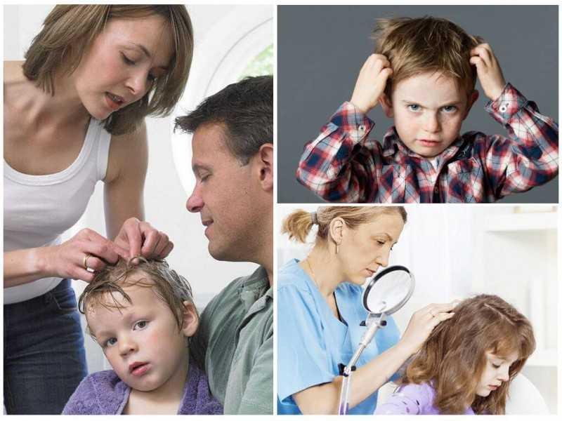 Педикулез - симптомы, причины, диагностика и лечение у детей и взрослых, средства от вшей