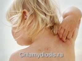 Чесотка фото симптомы и лечение