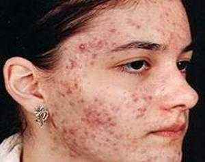 Признаки заражения подкожным клещом и лечение демодекоза на лице