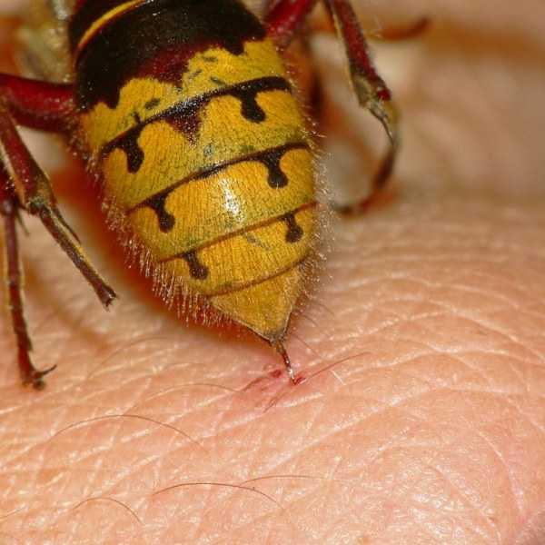 WithoutAllergyКрапивница от укусов насекомых признаки и что с этим делать