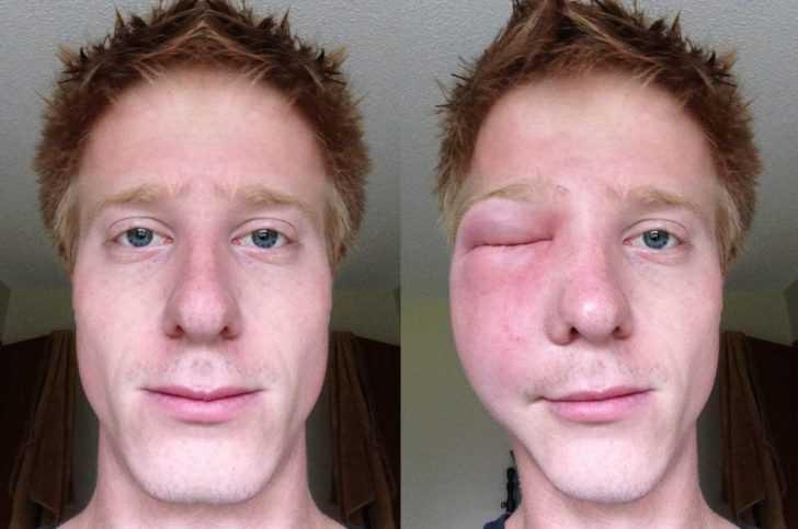 Что делать после укуса шершня
