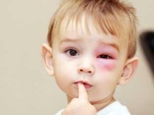 Аллергия на ужаления и укусы насекомых