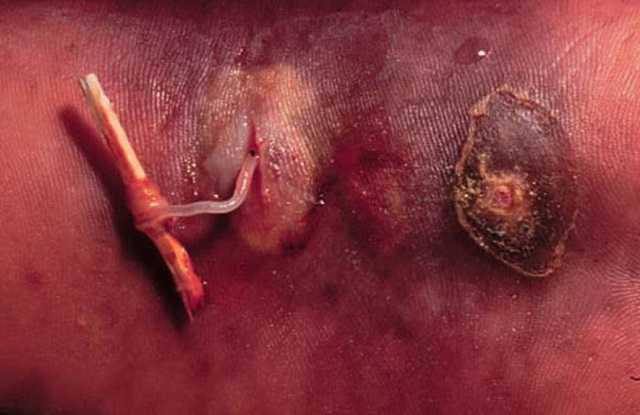 Что нужно знать о подкожных паразитах
