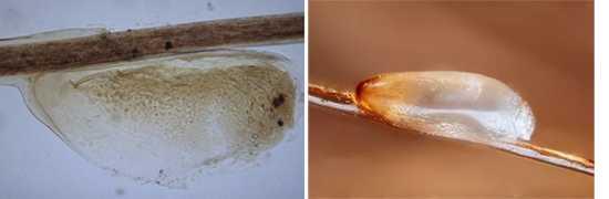 Как кусают бельевые вши, фото укусов