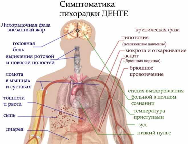 Заболевание Денге Фото