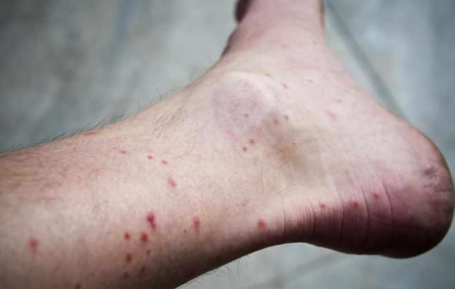 Развитие заболевания Денге
